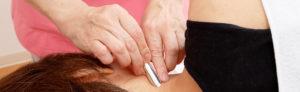 女性向け鍼灸
